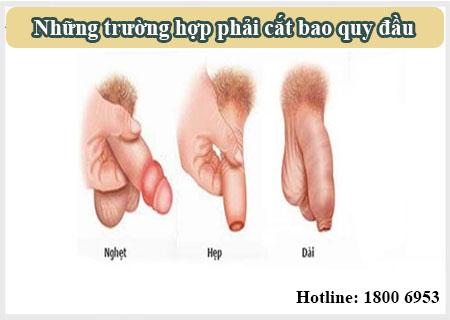 Nam giới gặp các tình trạng trên phải cắt bao quy đầu