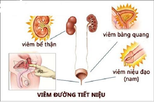 Tìm hiểu bệnh viêm đường tiết niệu